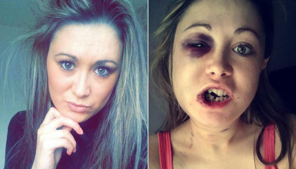 SA NEI: Stephanie Littlewood (32) fra Storbritannia ble grovt mishandlet av kjæresten i april. Foto: Privat