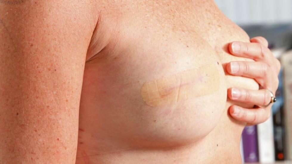 LITE ARR: Et lite arr er alt som avslører at Randi Sæter har fått et «nytt» bryst. FOTO: Bjørn Inge Karlsen, HM Foto