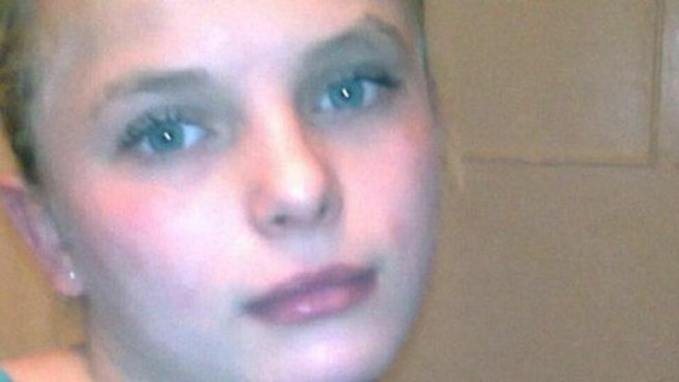 OVERLEVDE: Oksana Makar ble gruppevoldtatt, satt fyr på og kastet i en grøft. Hun overlevde mirakuløst ugjerningen. Foto: Novosti.