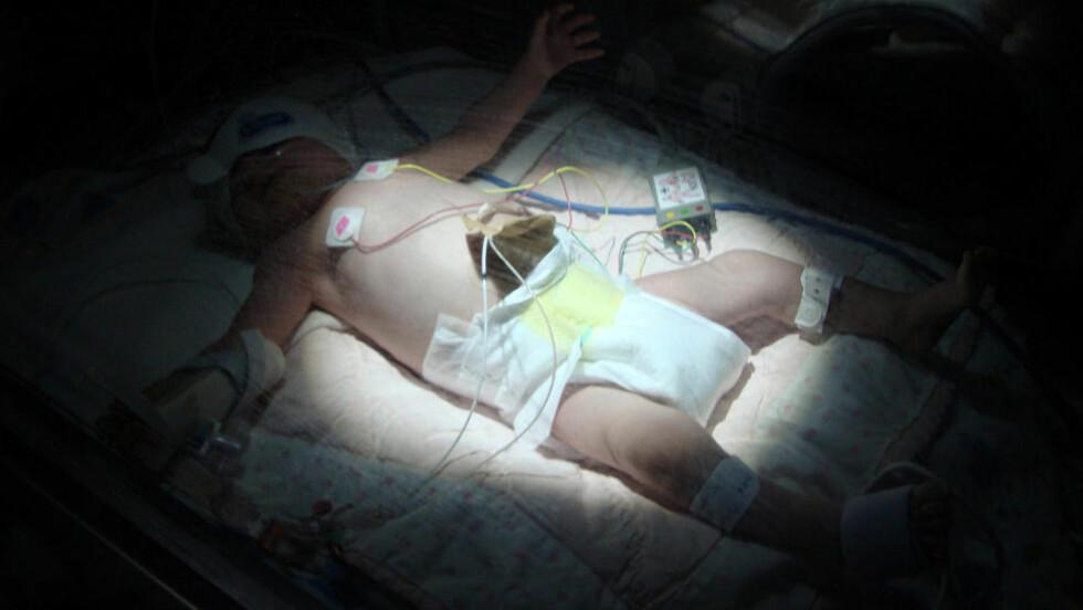 SVÆRT LAV HEMOGLOBINVERDI : Her ligger lille Olivia Norton timer etter at hun ble født med dramatisk lave verdier av hemoglobin. Foto: SWNS