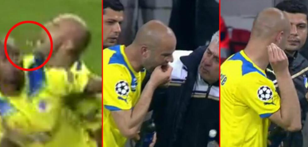 HARDHAUS: APOEL er ute av årets Champions League etter 2-5 i Madrid, men snakkisen er åpenbart Paulo Jorge, som mistet to tenner, rev ut en til, og fortsatte kampen. Skjermdump: Viasat