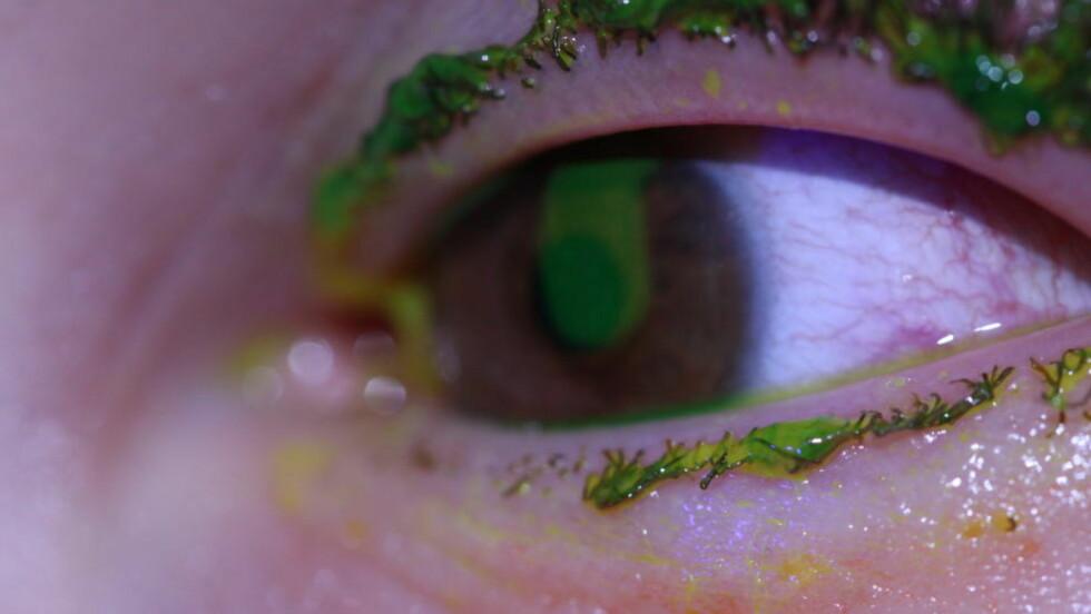 SKADD: Dette er et bilde av én av de 16 personene som fikk alvorlige øyeskader i natt. Foto: HAUKELAND UNIVERSITETSYKEHUS