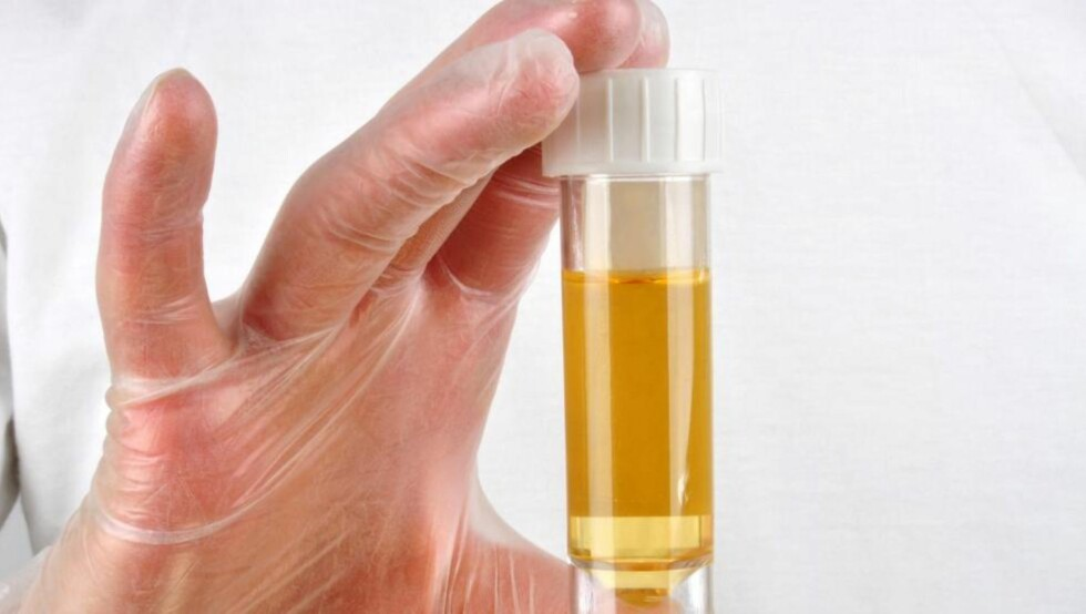 HELSESJEKK PÅ BADET: Urinen din kan si mye om helsetilstanden. Farge og lukt er noe av det du kan legge merke til selv.  Foto: Colourbox.com