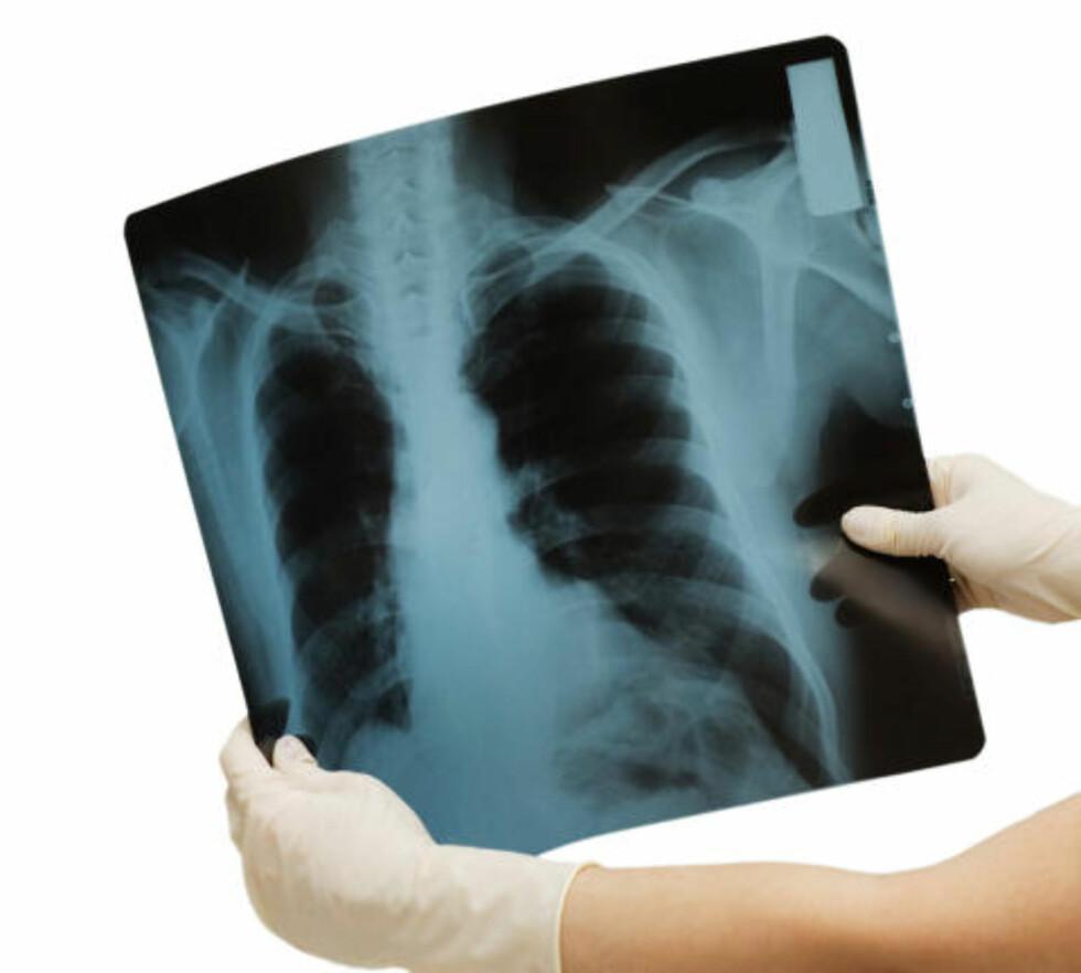 REDUSERER ANFALL: Astmaanfall kommer sjeldnere om du begynner å trene. Kondisjonstrening i moderat til høy intensitet får lungene til å ta opp mer oksygen og virker betennelsesdempende på dem. Foto: Colourbox