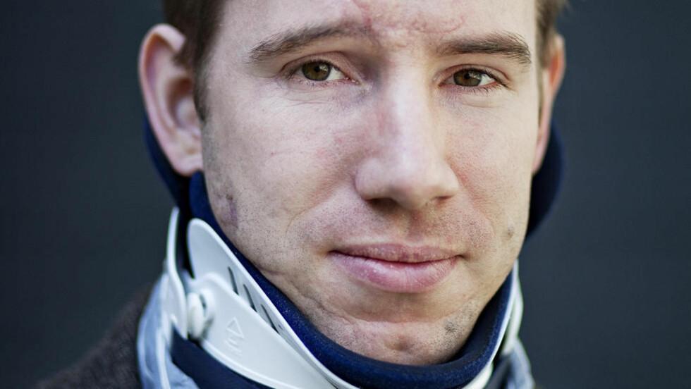 HARDT SKADD: Kristian Rasmussen (30) lå 12 dager i koma og husket ingenting da han våkent. På sykehuset ble det konstatert en blødning i hjernen, skader på lunge og buke, brudd i nakken, samt flere ribbeinsbrudd. Han hadde mistet over to liter blod og hadde glass i øynene.  Foto: Jo Straube, Dagbladet