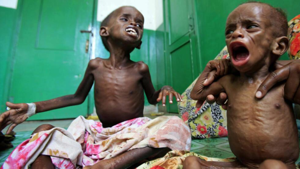 HJERTESKJÆRENDE: To underernærte, små barn gråter av sult på en barneavdeling på et sykehus i Mogadishu 4. august. Foto: REUTERS/Ismail Taxta