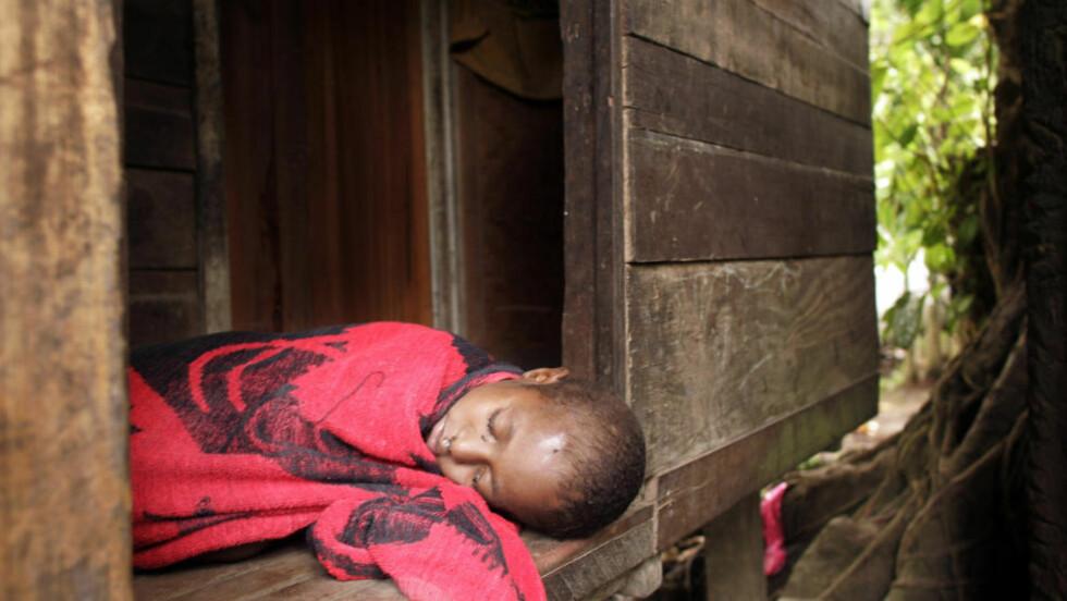 MALARIA: Infeksjonssykdommer som malaria fører til lavere intelligens. Hjernen får ikke nok energi til å utvikle seg, når et barn må bekjempe en fremmed mikroorganisme. Denne lille jenta på Papa New Guinea lider av malaria, en sykdom som smitter via mygg. Sykdommen tar livet av 800 000 mennesker årlig, selv om det finnes medisiner som både kan forhindre at man blir smittet og behandle sykdommen. Illustrasjonsfoto: David Longstreath/AP/Scanpix