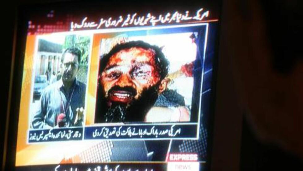 SIRKULERTE I MEDIENE: Et bilde av det som skulle være bin Ladens lik sirkulert i går en rekke medier, blant annet Dagbladet.no. Nyhetsbyrået AP opplyste senere i går at de ikke fikk verifisert at bildet er av liket, og har derfor trukket det. Det var pakistansk TV som først viste bildet. Foto: Scanpix