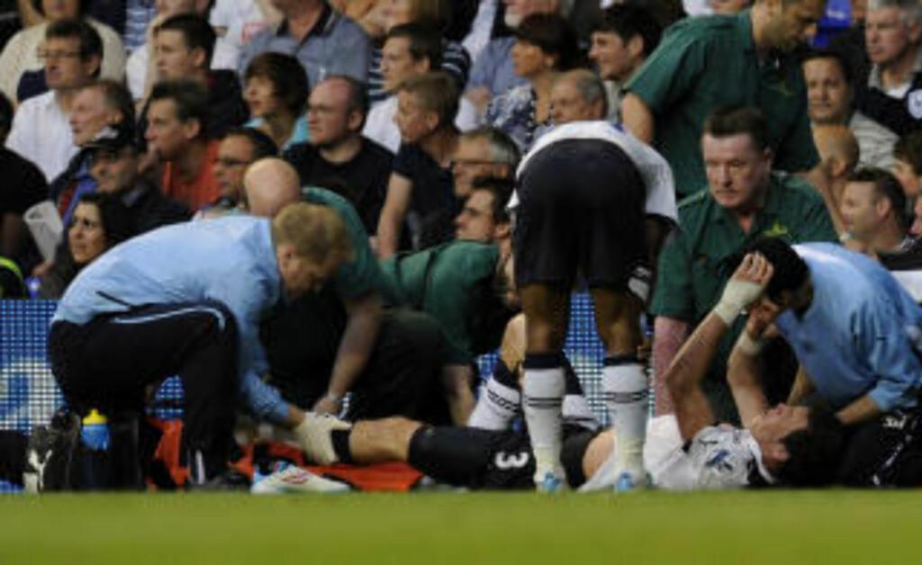 SKADESKUTT: Gareth Bale skadet leddbåndene mot Blackpool lørdag kveld og er ute av Spurs' sesonginnspurt. Foto: AP/Tom Hevezi