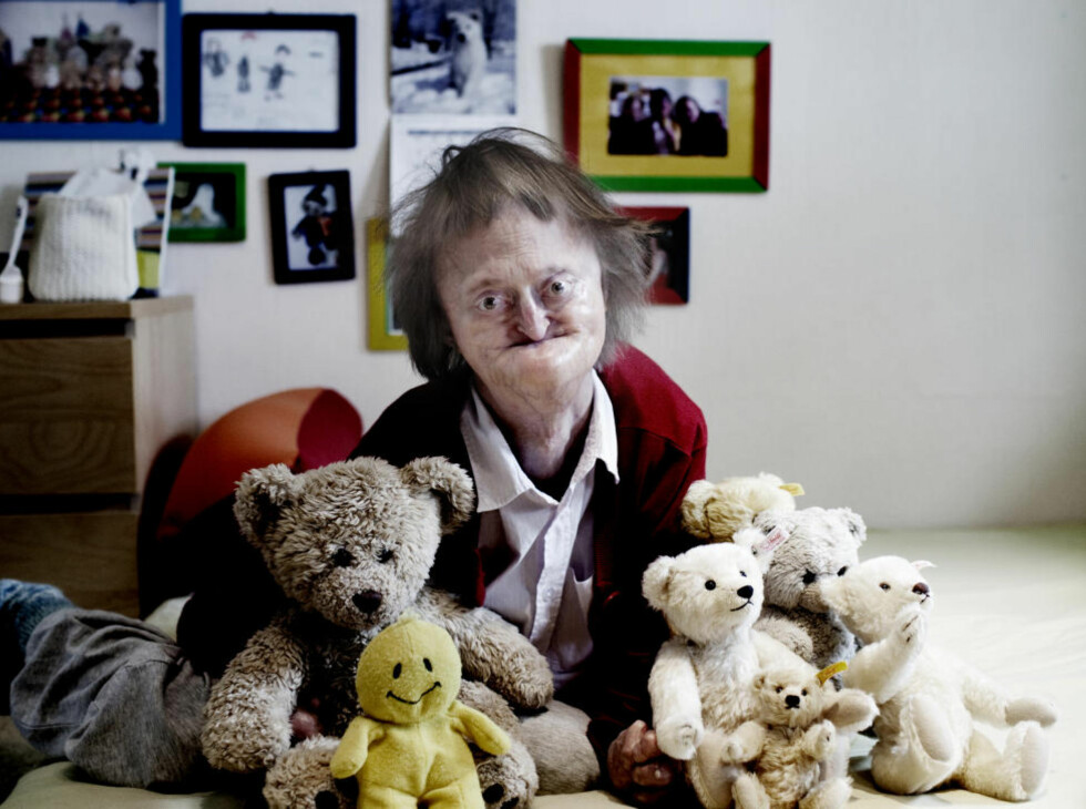 Sjelden sykdom: Henriette Hoffmann har en variant av en av verdens mest sjeldne diagnoser: progeri. Foto: Siv Sglem.