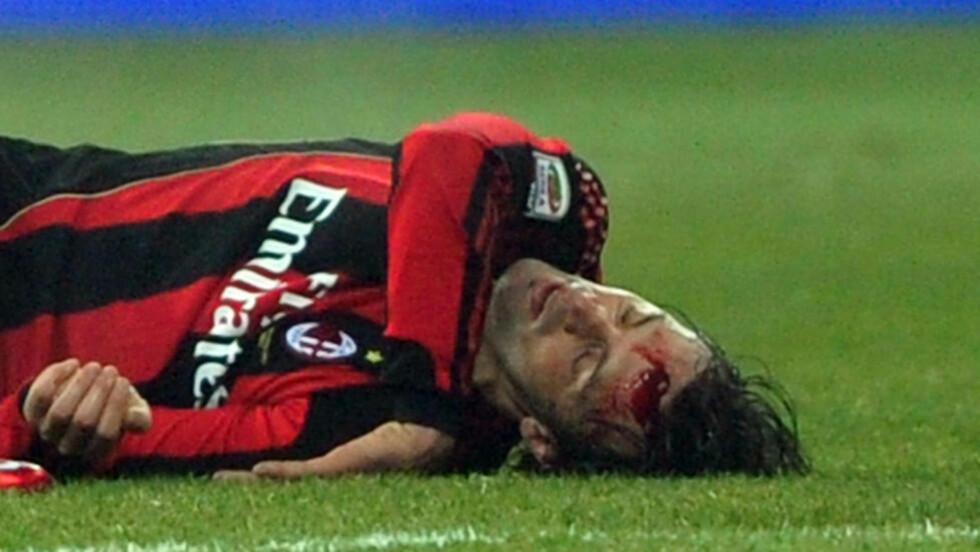 BLODIG DEBUT: Slik endte Milan-debuten for Nicola Legrottaglie. Han ble fraktet til sykehus etter å ha blitt sparket i hodet. Foto: GIUSEPPE CACACE/AFP