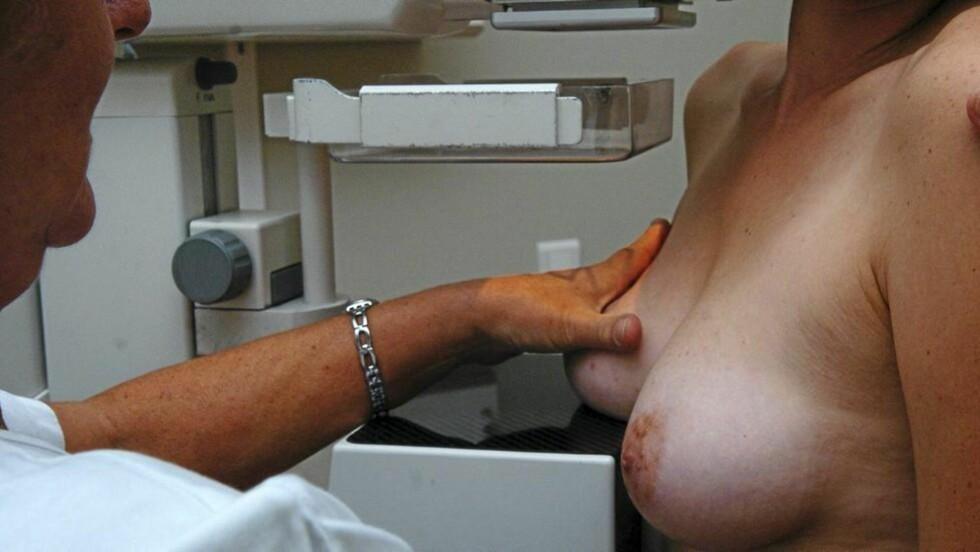 MAMMOGRAFI: Kvinnelige grafikere og journalister har høyest risiko for brystkreft. Illustrasjonsfoto: www.colourbox.com