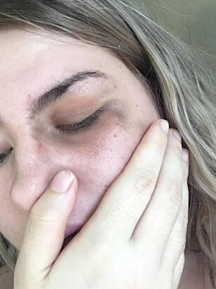 ETTERPÅ: Etter hendelsen som skal ha funnet sted på vei hjem fra byen, tok Victoria bilder av blåveisen. Foto: Privat