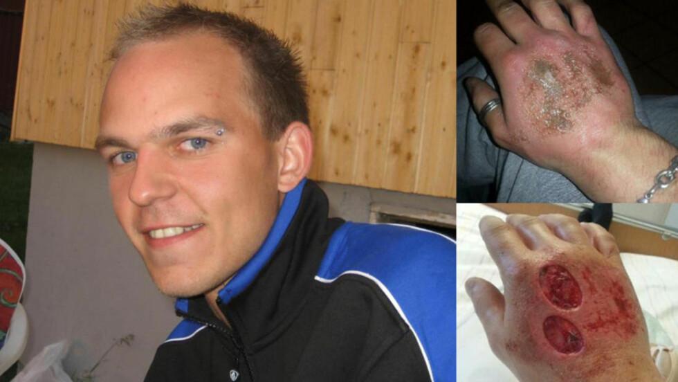 ETSESKADET HÅND:  En steikeovnsvask endte med død hud og hudtransplantasjon for John Rune Antonsen fra Bodø. Bildet øverst til høyre er tatt rett etter at han hadde vasket ovnen, mens bildet nederst viser hånda etter at legene hadde fjernet den døde huden. Foto: Privat