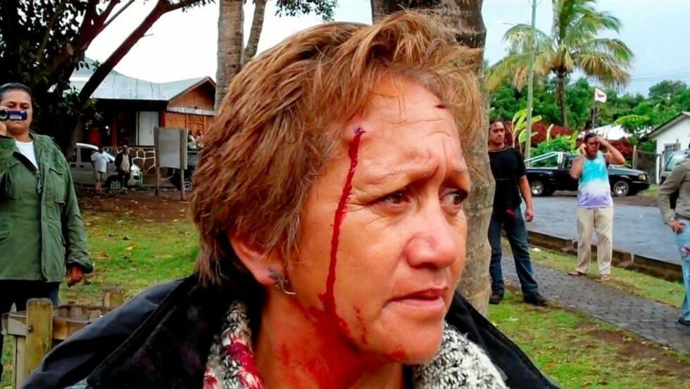 SAMMENSTØT:  Blodig innbygger på Påskeøyas eneste tettsted Hanga Roa etter konfrontasjon med chilensk politi. FOTO: AP/SCANPIX.
