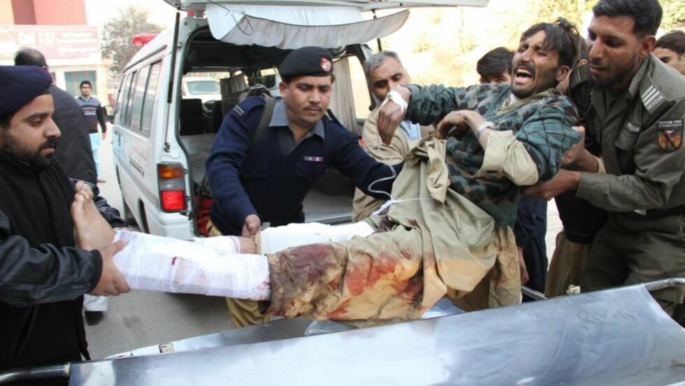 RAMMET USKYLDIGE: Over 60 er såret og minst 41 drept etter at en selvmordsbomber slo til mot en matkø. Denne mannen skriker av smerte mens soldater og politi yter førstehjelp. Foto:  EPA/ARSHAD ARBAB/Scanpix