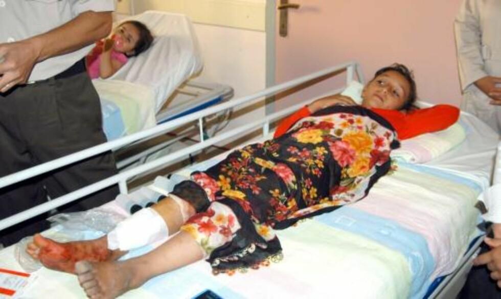 <strong>SKADET:</strong> En ung tyrkisk jente ble fraktet til sykehus etter at hun ble skadet i skytedramaet. Brudgommens far og to tanter ble drept under skytingen, mens åtte andre slektninger ble skadet. Foto: Ahmed Karaaslan/ EPA