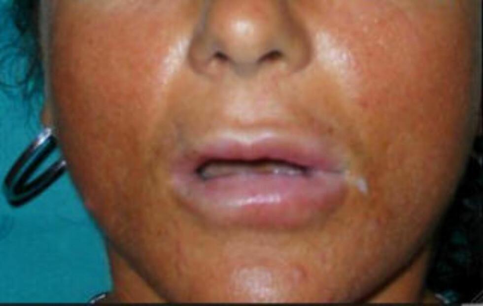 BOTOX: Kvinnen fikk ødelagt leppene sine etter behandling med Botox. Foto: Domenico Stefania