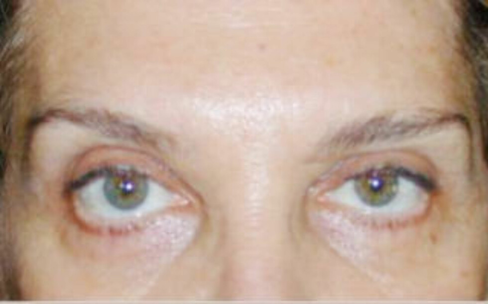 ASYMMETRISK: Denne pasienten hadde fåttasymmetriske øyebryn etter injeksjoner med botox. Foto: Domenico Stefania