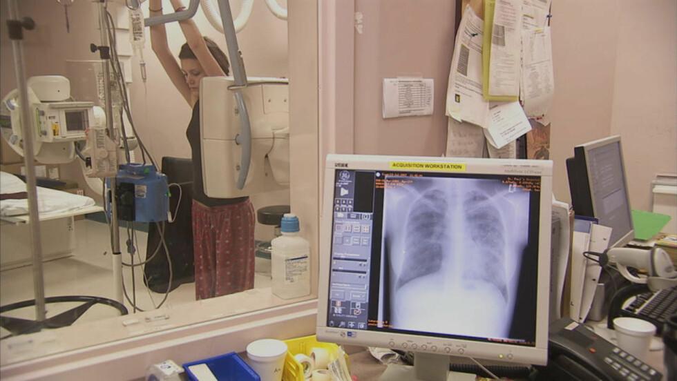 RØNTGEN: Eva Markvool på røntgenundersøkelser. 25-åringen døde 27. mars etter lang tids kamp mot sykdommen cystisk fibrose. Foto: 65redroses.com