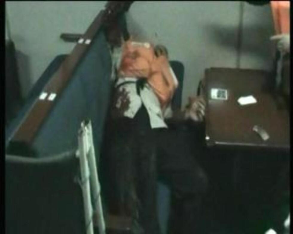 <strong>SKADD:</strong> Denne skjermdumpen fra et videoopptak om bord på det tyrkiske hovedfartøyet viser en skadd person. Foto: EPA/Cihan/SCANPIX