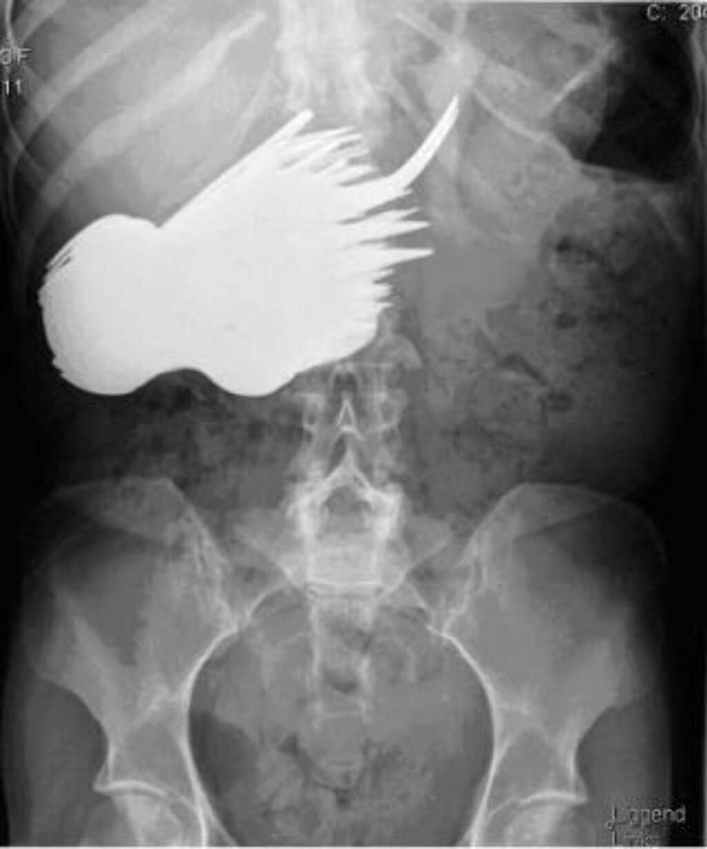RØNTGEN: Bildet viser hvordan bestikket hadde lagt seg i en klump i magen. Foto: ALL OVER PRESS
