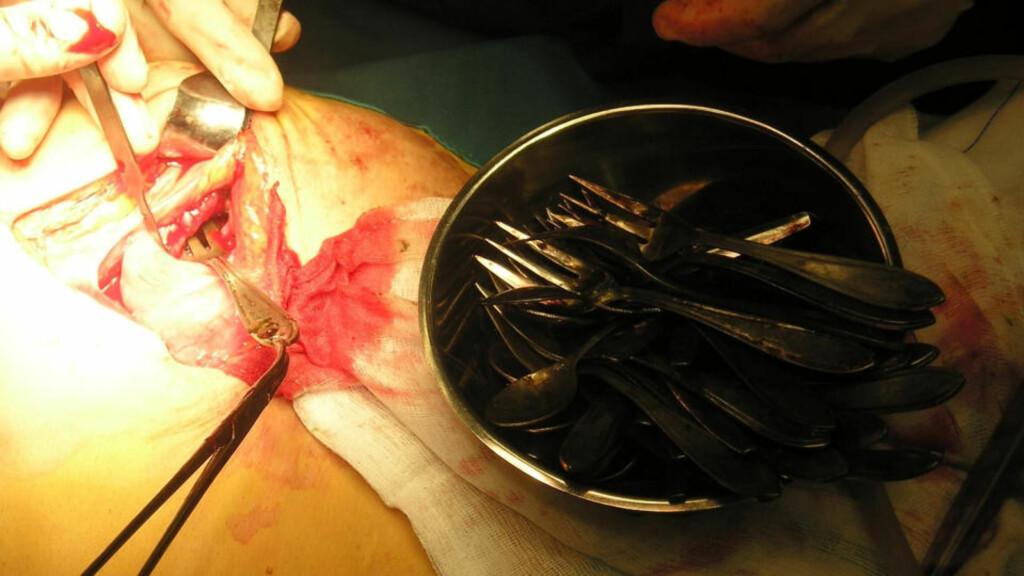 TVANGSTANKER: Den nederlandske kvinnen som hadde svelget 78 skjeer og gafler hadde en personlighetsforstyrrelse. Foto: ALL OVER PRESS
