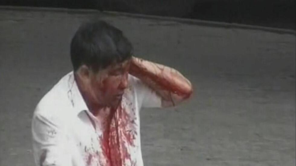 OM OG OM IGJEN: Bildene av blodige og forslåtte hankinesere vises om og om igjen på kinesisk statlig fjernsyn. Foto: REUTERS/CCTV/SCANPIX