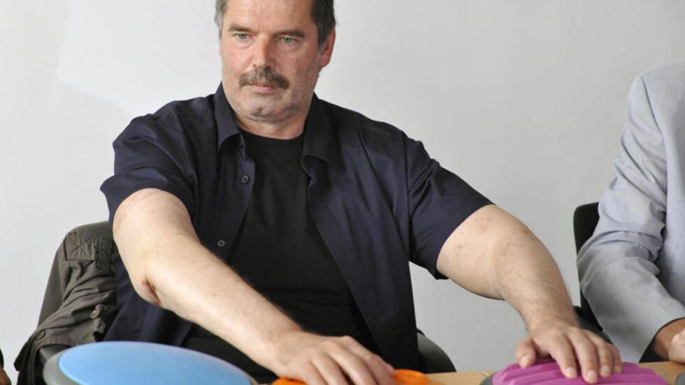 NYE ARMER: Karl Merk fikk nye armer etter en banebrytene operasjon i Tyskland.    AFP PHOTO  DDP/  LENNART PREISS