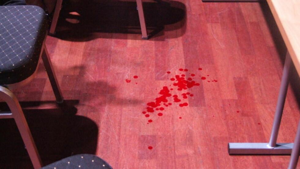 BLODIG: Debatten ble avbrutt etter at Norgespatriotenes leder Øystein Heian ble truffet av en gjenstand kastet fra salen under en skoledebatt for Færder videregående skole, holdt i Oseberg kulturhus i tønsberg i ettermiddag. Foto: CHRISTIAN HØYBØ