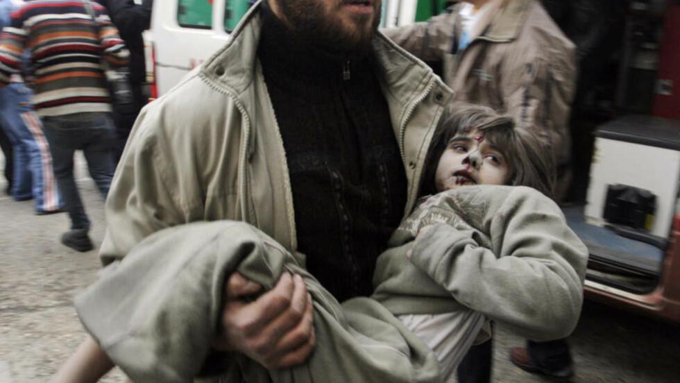 TIL SYKEHUS:  Denne lille jenta er på vei til sykehus i Gaza etter å ha blitt såret. Men om hun får den hjelpen hun trenger er tvilsomt. Foto: AP/SCANPIX