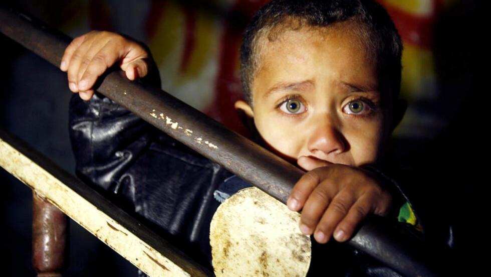 RAMMET HARDT: Denne gutten deltok i en begravelse for en av de sivile som er blitt drept av israelernes bomber. Foto: REUTERS/Ibraheem Abu Mustafa/Scanpix