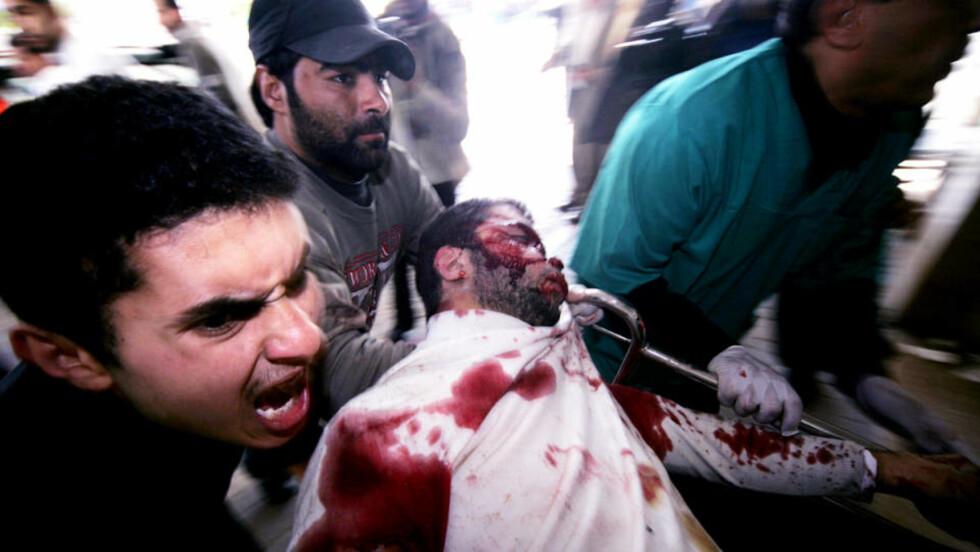 MANGE DREPTE: De første bildene fra dagens blodbad er nå i ferd med å komme ut av Gaza. Ved sykehusene er forholdene ubeskrivelige.