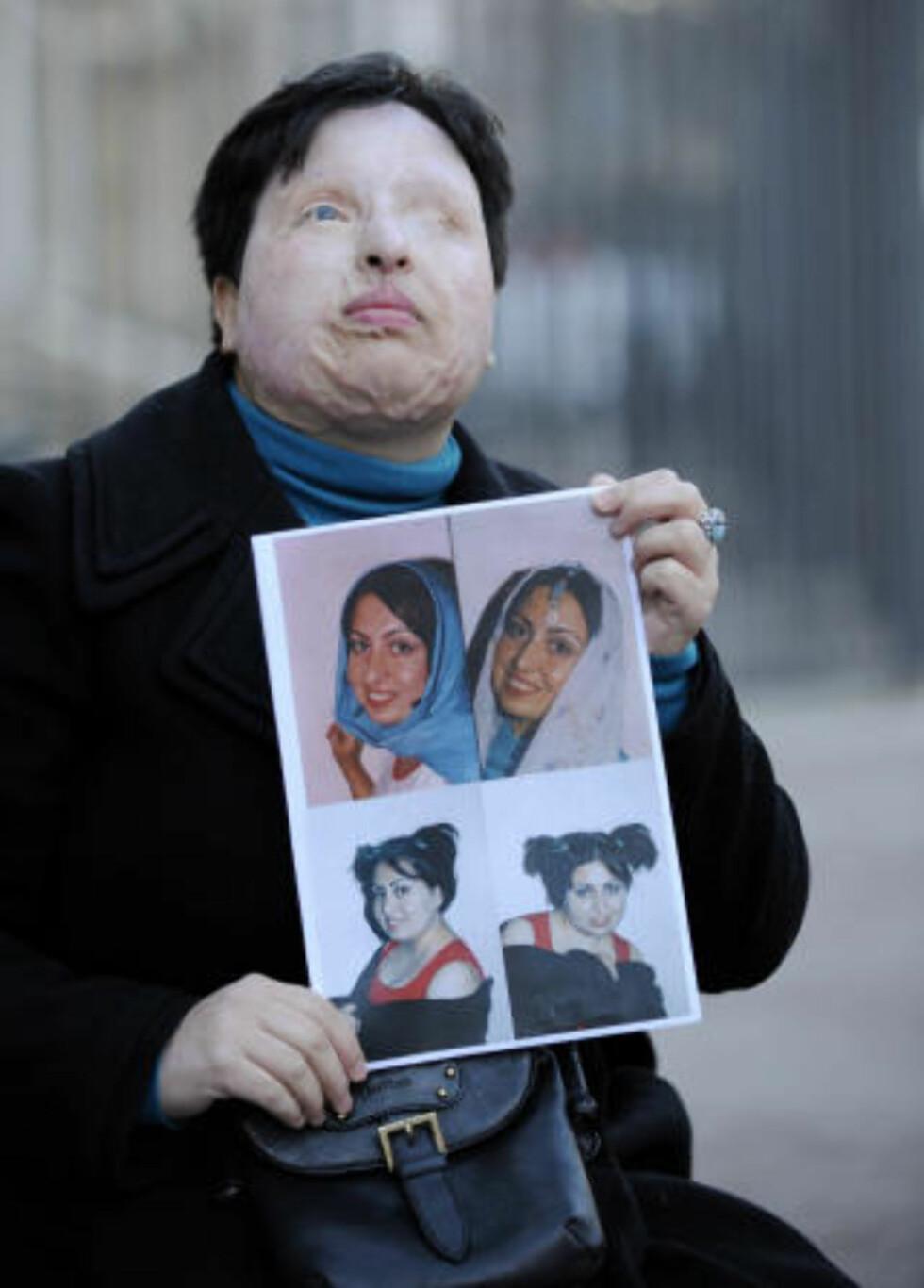 VILLE IKKE GIFTE SEG: Ameneh Bahrami vil at mannen skal få sin straff, slik at ikke flere kvinner opplever det samme som henne. Foto: AFP Photo/LLUIS GENE/Scanpix