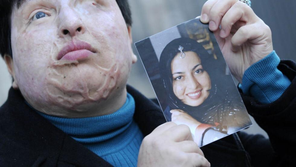SLIK SÅ HUN UT FØR: Ameneh Bahrami har fått store skader og er blind etter syreangrepet i 2004. Foto: AFP Photo/LLUIS GENE/Scanpix