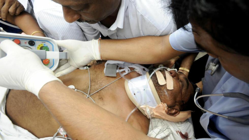 SKADD MINISTER: Sri Lankas tele- og kommunikasjonsminister Mahinda Wijesekera blir behandlet etter selvmordsbombingen på Sri Lanka. AFP PHOTO/Ishara S. KODIKARA