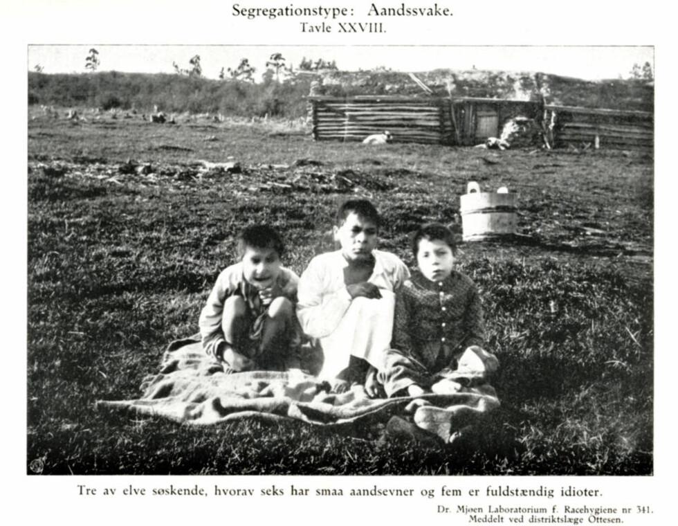 SEGREGASJONSTYPE: ÅNDSSVAKE: Bildet av tre søsken er hentet fra Jon Alfred Mjøens bok «Racehygiene» (først publisert i 1914). - Den mest motbydelige boken jeg har lest, sier forsker Torgeir Skorgen.