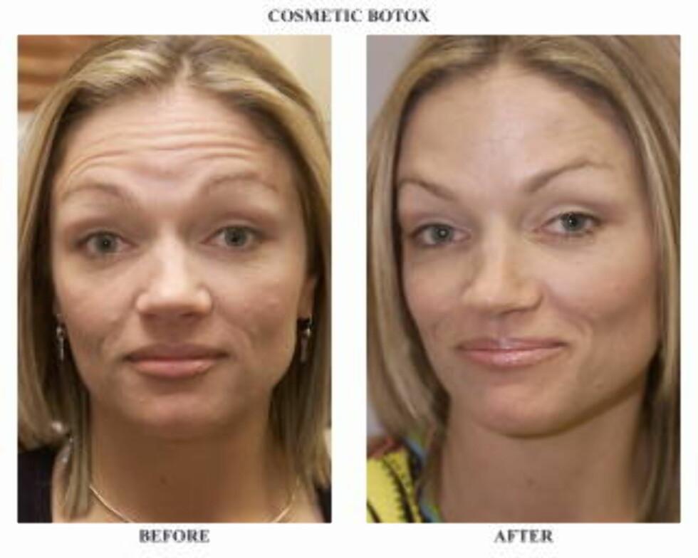 FJERNER OGSÅ ANSIKTSUTTRYKKENE: Den amerikanske journalisten Lisa J. Davis er avbildet før og etter en Botox-injeksjon. På begge bildene rynker hun panna, noe som ikke synes etter at musklene ble lammet av preparatet. Foto: AP PHOTO/SCANPIX