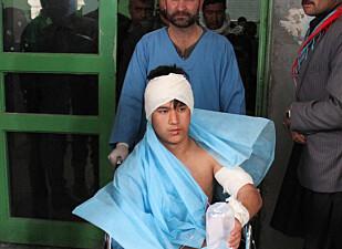 SKADD: Denne afghansk gutten er en av de mange skadde i angrepet i går. Foto: Haroon Sabawoon / Anadolu Agency / NTB Scanpix