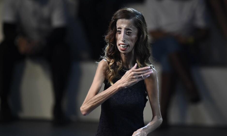 TAR TIL MOTMÆLE: Lizzie Velásquez jobber aktivt mot mobbing. Etter at et hånlig bilde av henne dukket opp i sosiale medier, har hun skrevet et lengre innlegg på Instagram-profilen. Foto: NTB Scanpix