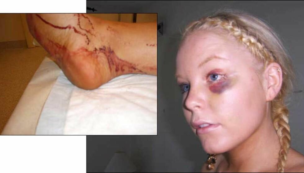 FIKK BLÅVEIS OG KUTT I LEGGEN: Tiffany Borgersen ble slått ned på et utested i helga. Foto: PRIVAT