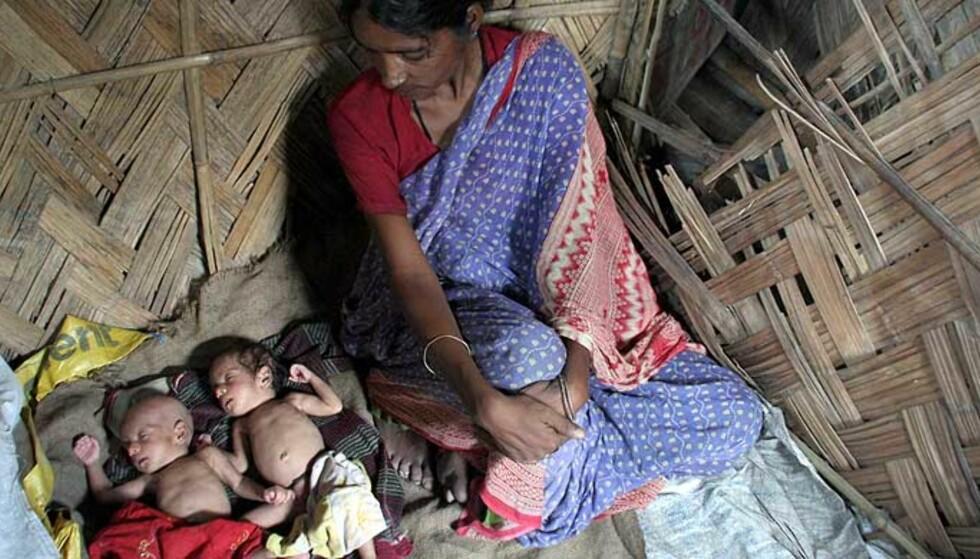 VILLE SELGE BARNA: En enslig og fattig indisk kvinne med sine små  tvillingdøtre Laxmi og Saraswati, som hun skal ha forsøkt å selge for småpenger. Nå får hun hjelp ved et senter til å brødfø seg selv og barna. Foto: AFP/ SCANPIX