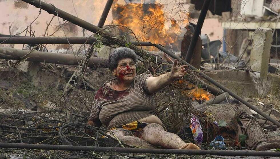 HUMANITÆR KATASTROFE:Denne kvinnen ligger skadet foran boligblokken sin i byen Gori, etter at angrep fra russiske bombefly. Kvinnen ble hjulpet i sikkerhet etter at bildet ble tatt. FOTO: DAVID MDZINARISHVILI