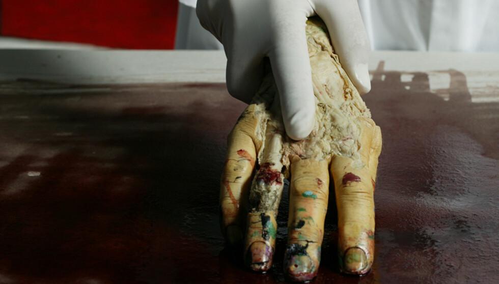 VIL BLI DIREKTØR: 13 søkere vil bli direktør ved Nasjonalmuseet. Blant den er den kontroversielle kunstneren Morten Viskum, som i mange år har malt med en død persons hånd FOTO: Mette Randem / Dagbladet