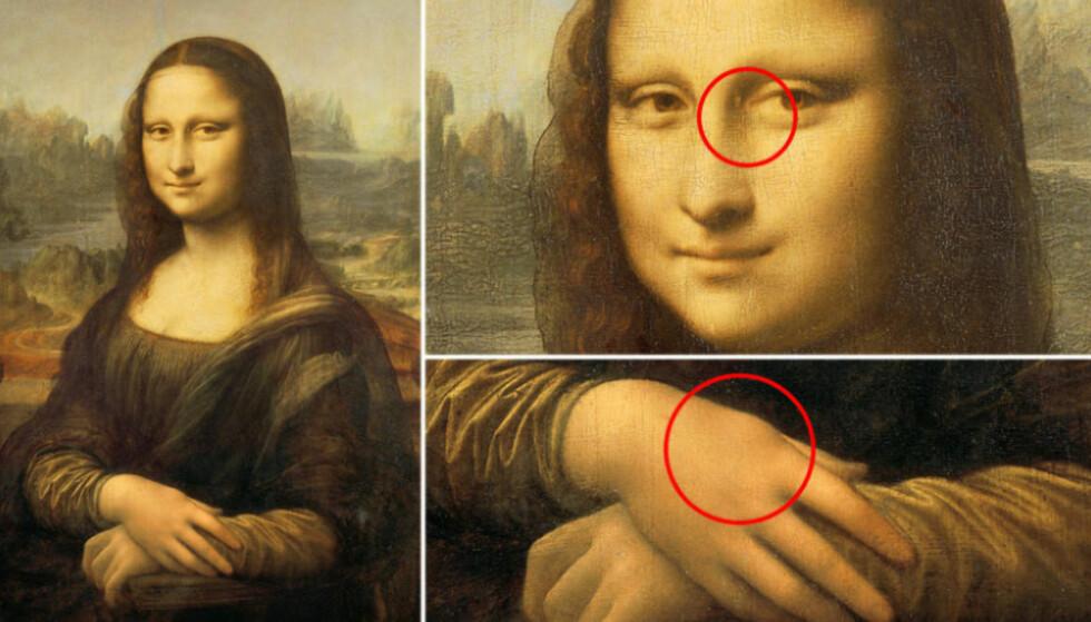 HISTORIENS FØRSTE: Den norske legen og forskeren Leiv Ose mener at Leonardo da Vincis verdensberømte portrett av Mona Lisa inneholder flere mysterier enn et gåtefullt smil. Ose mener maleriet er historiens første dokumenterte tilfelle av sykdommen Familiær Hyperkolesterolemi. Foto: Scanpix