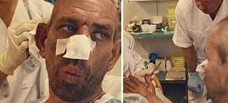 Lothepus ble innlagt på sykehus: - Fikk sjokk da det eksploderte