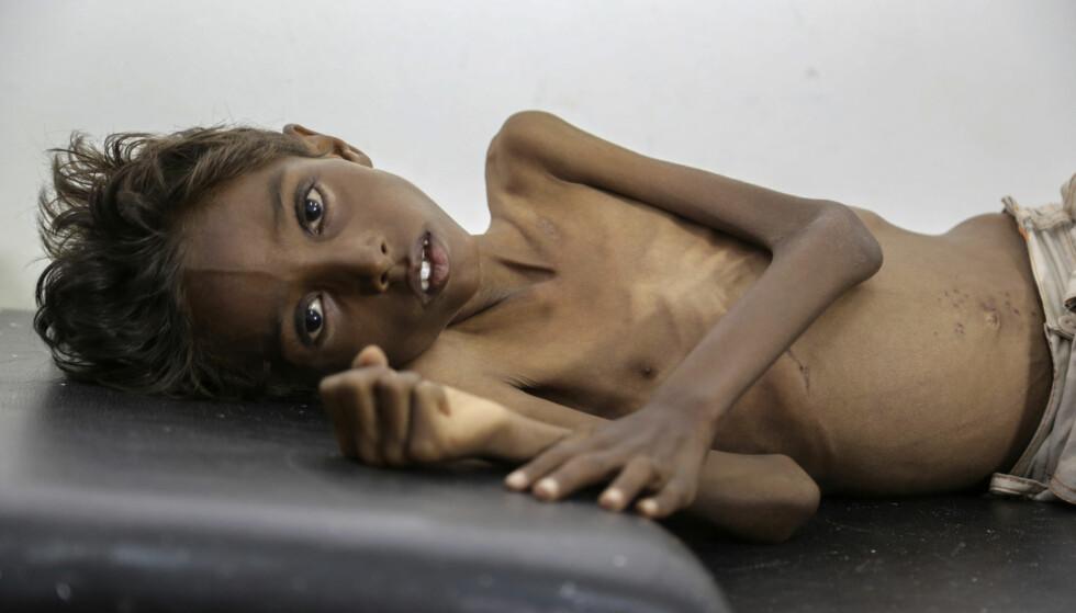 SULTER: Hver dag dør 130 barn av hungersnød i Jemen. 5 år gamle Mohannad Ali er et av mange tusen barn rammet av sultkatastrofen. Foto: Hakim/UNICEF/AP