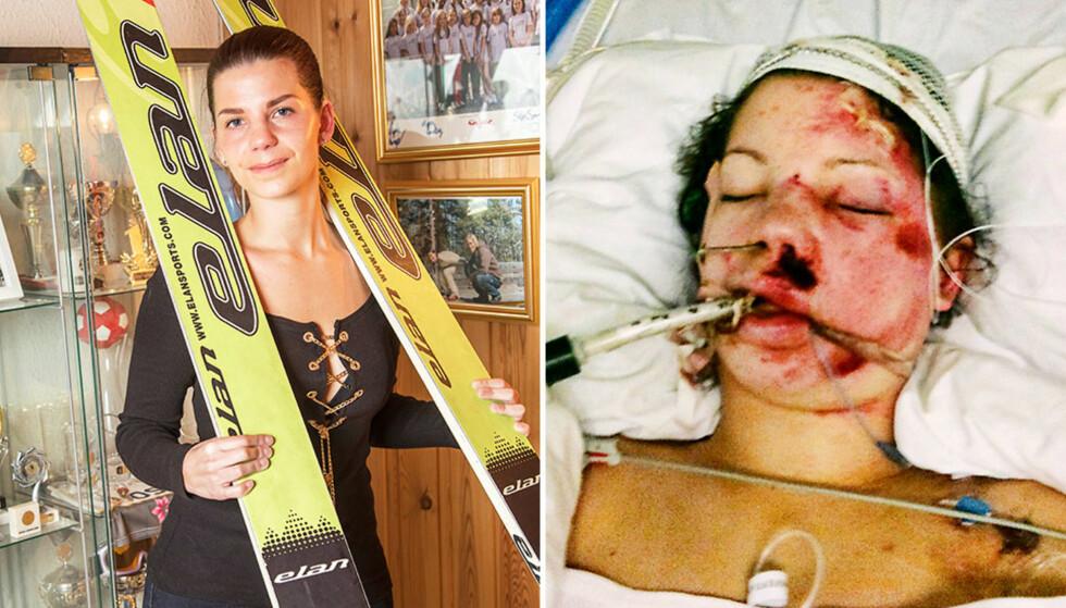 HAR BEHOLDT SKIENE: Her er Sara Gunnerud med hoppskiene hun brukte ulykkesdagen- Jeg vil ta vare på dem, sier hun. Foto: Morten Eik og privat