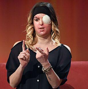 SYRESKADD: Gessica Notaro snakker ut om det fatale syreangrepet hun ble utsatt for tidligere i år. Foto: NTB Scanpix.