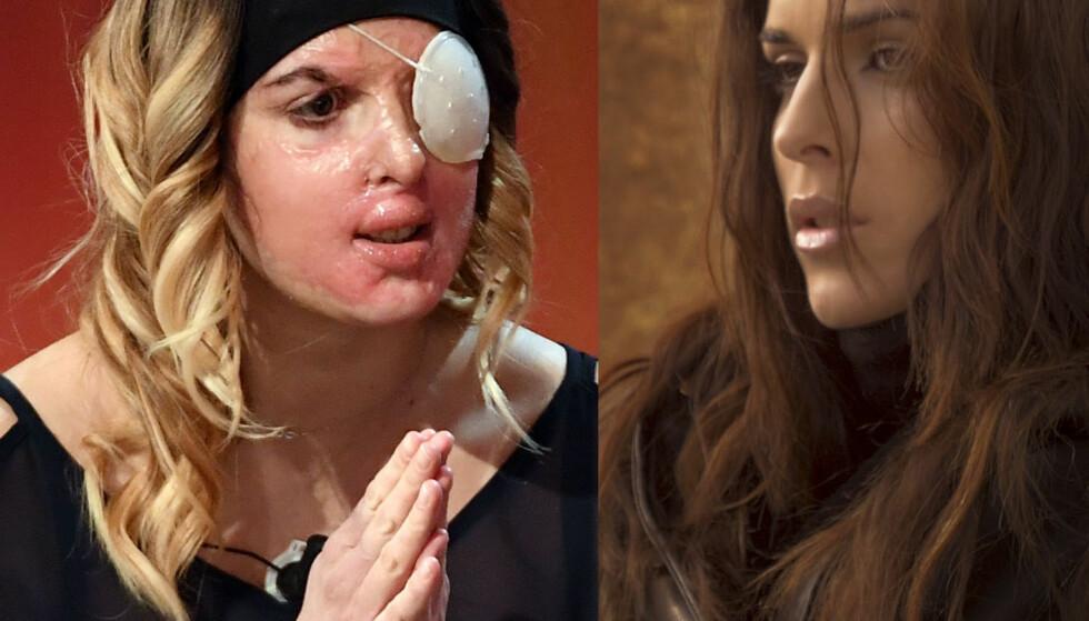 FØR OG NÅ: Slik så den tidligere skjønnhetsdronningen, Gessica Notaro, ut før hun ble utsatt for et syreangrep tidligere i år. Foto: NTB Scanpix